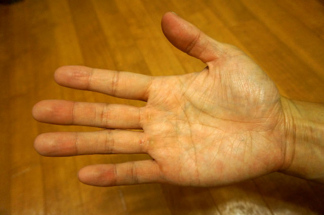 筋トレで割れた指