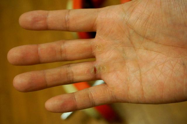 ダンベルトレーニングで割れた指